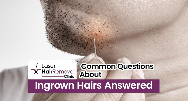 Common Questions About Ingrown Hairs Answered