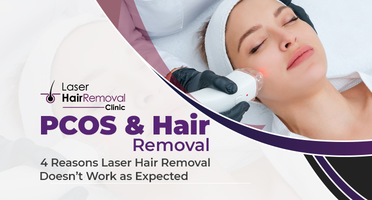PCOS & Hair Removal: 4 Reasons Laser Hair Removal Doesn't Work as Expected